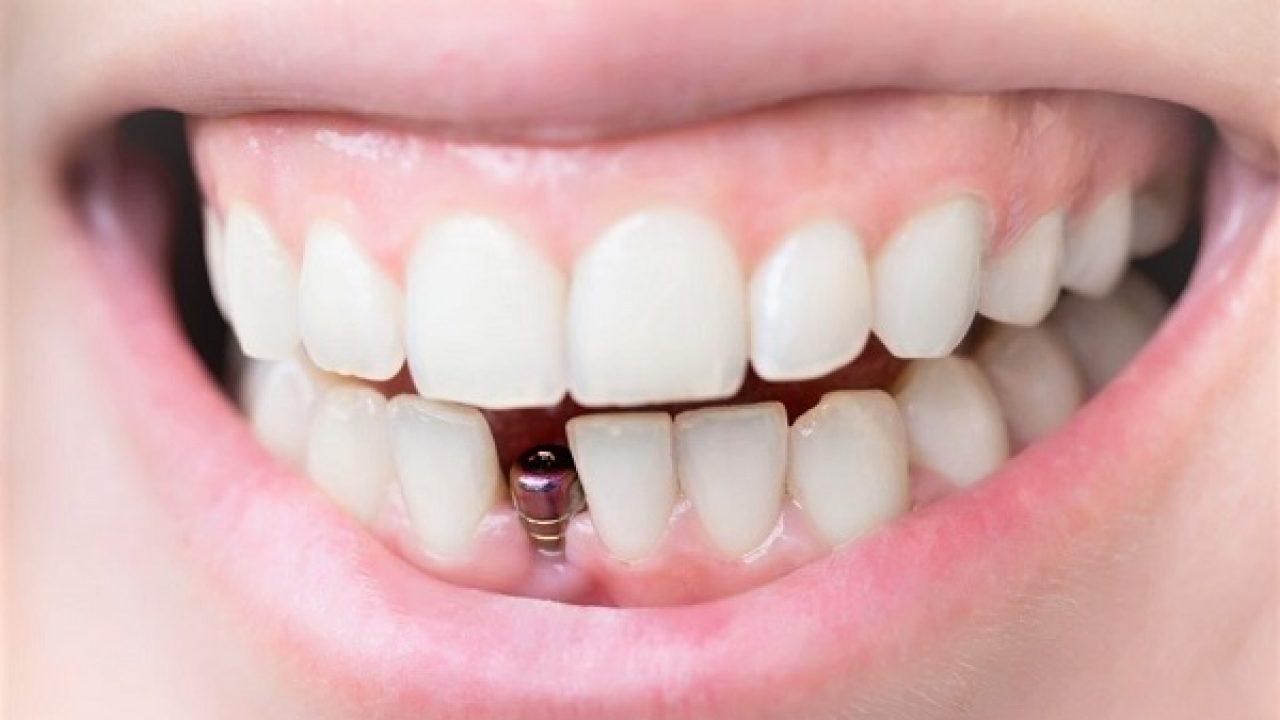 Implant dentaire : combien durent-ils ?