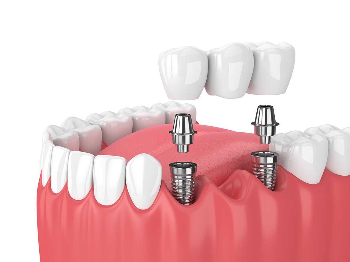 Implant dentaire Lyon : comment ça se passe ?