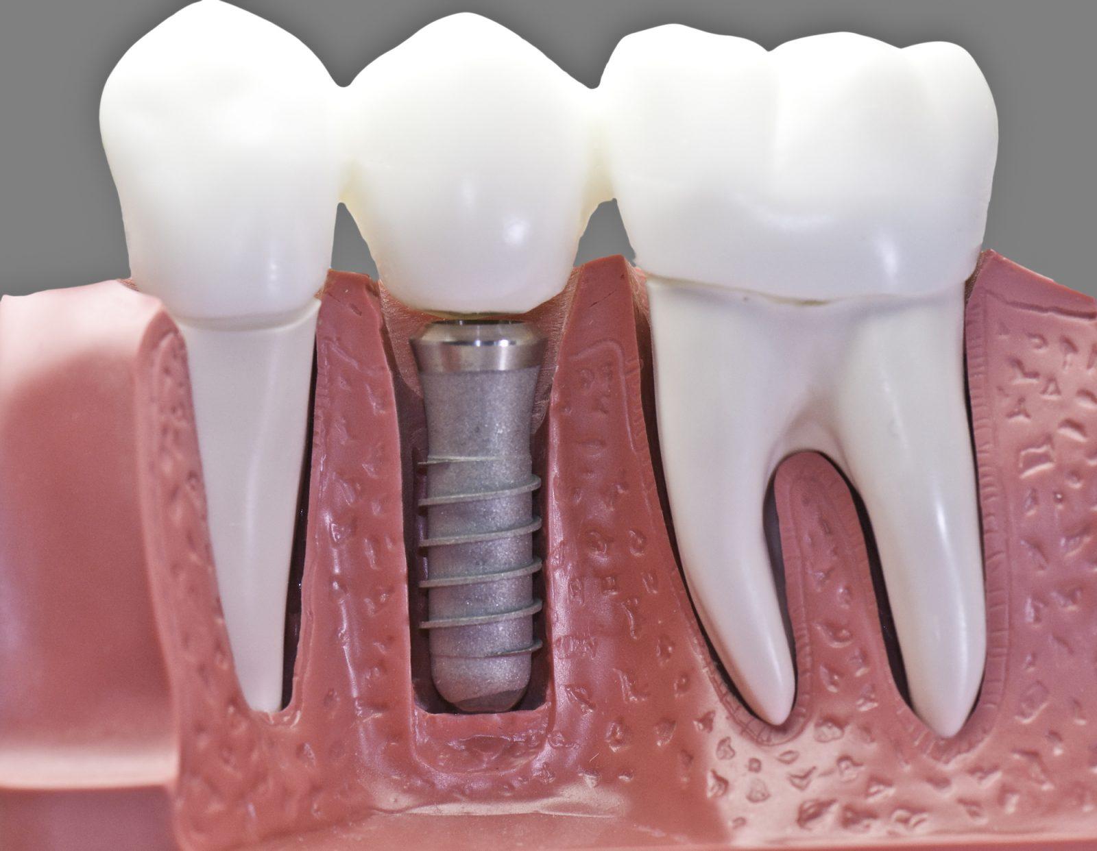 Implant dentaire : quel est le rôle du dentiste ?